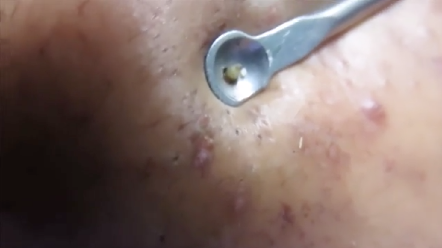 Satisfying Comedone Extraction - Medical Videos
