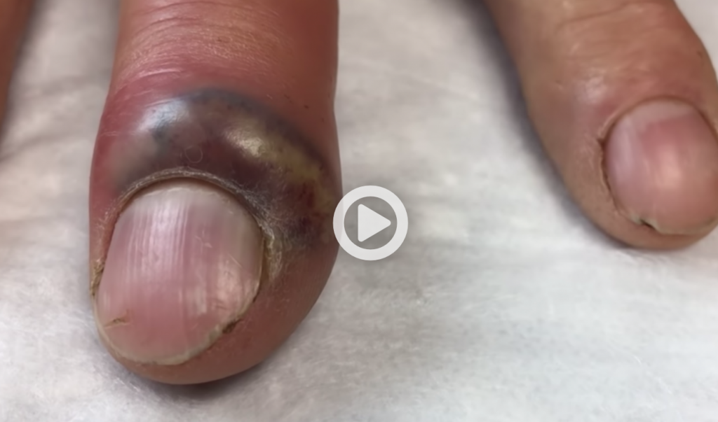 Finger nail infection treatment