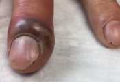 Fingernail abscess infection