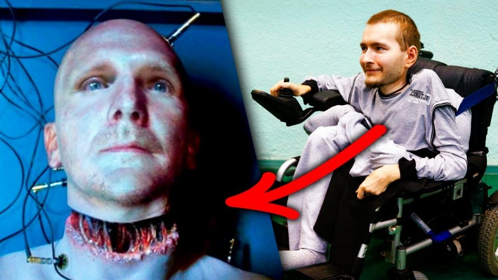 Is Head Transplant Possible