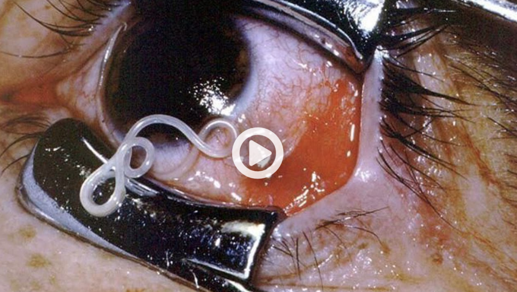 Worms Were Pulled out of a Womans Eye