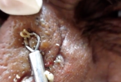 blackheads whiteheads extraction removal