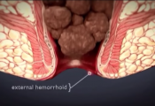 what are hemorroids how to get rid of it