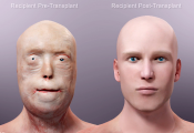 Face Transplant Surgery Video