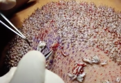 Hair Transplant Graft Video