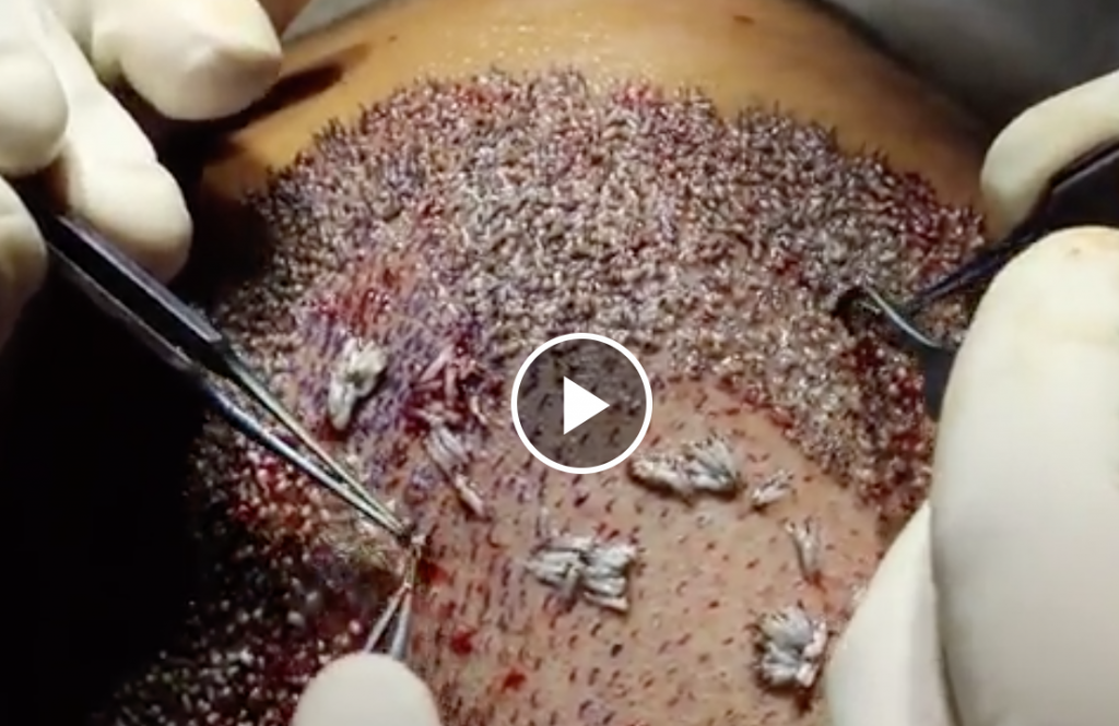 Hair Transplant With Grafts