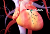 Stent to Treat Heart Attack
