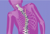 What is Scoliosis Surgery Video