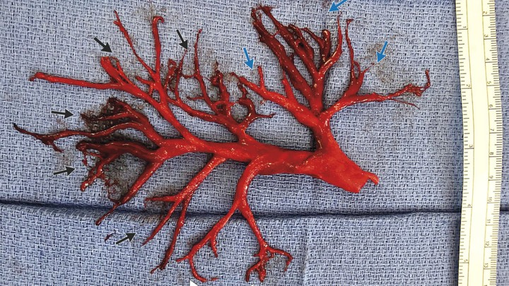 man coughed up an intact blood clot shaped like a lung passage.