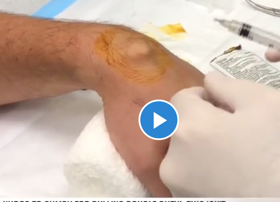 Popping Ganglion Cyst with a Big Needle - Medical Videos