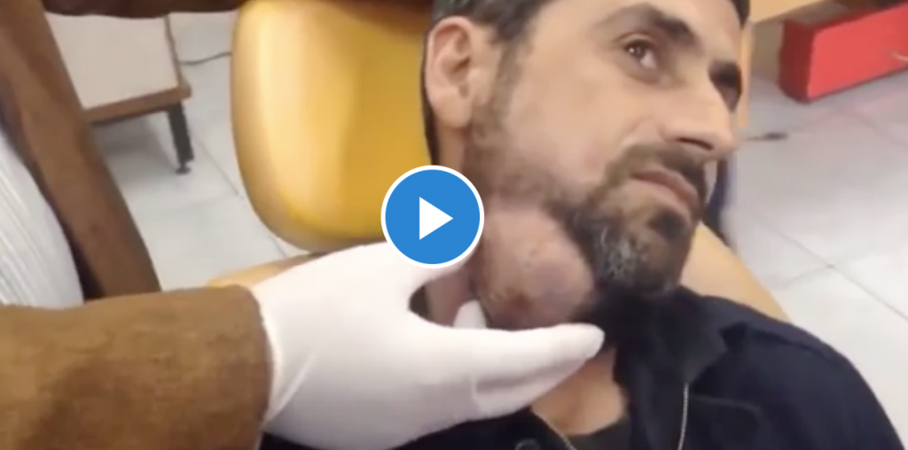 Draining Huge Face Abscess Video