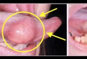 Extracting Tongue Lipoma