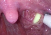 Extreme Tonsil Stone Removal Procedure