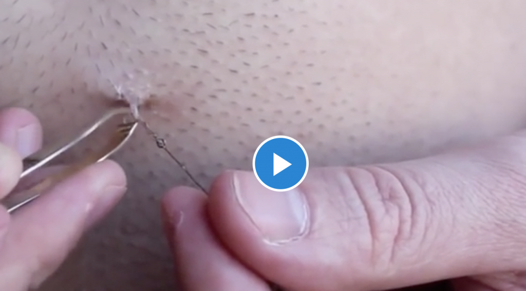 Ingrown Abdominal Hair Removal
