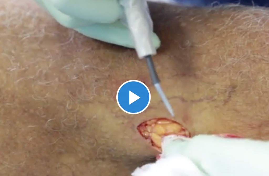 Skin Cancer Removal from Leg