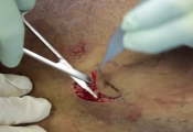 Skin Cancer Removal from Leg Video