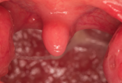Tonsil Abscess Removal