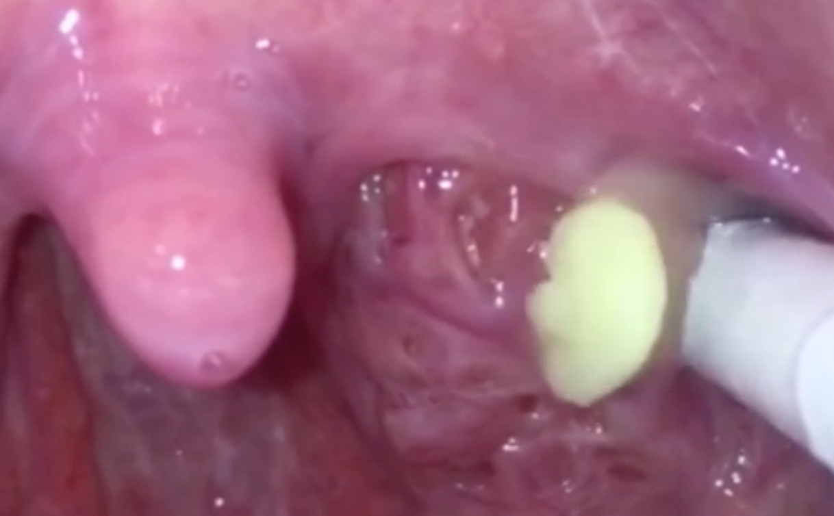 Tonsil Stones Removal Compilation - Medical Videos