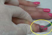 Worst Nail Infections: Paronychia