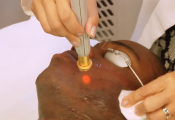 Yag Laser Hair Removal Dark Skin