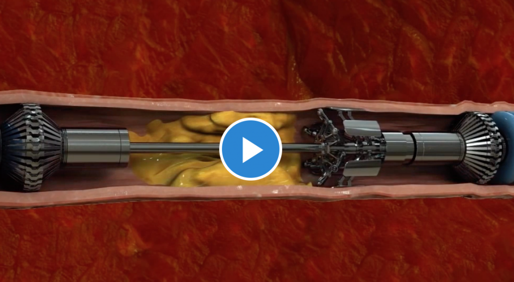 cholesterol removal machine video