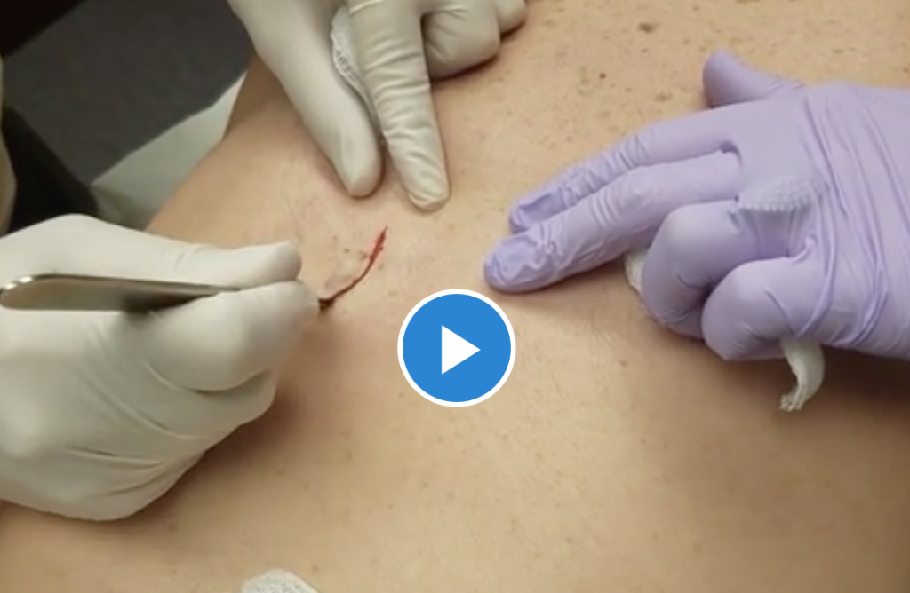 removal of deep skin cyst video