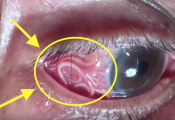 worm removed from eye