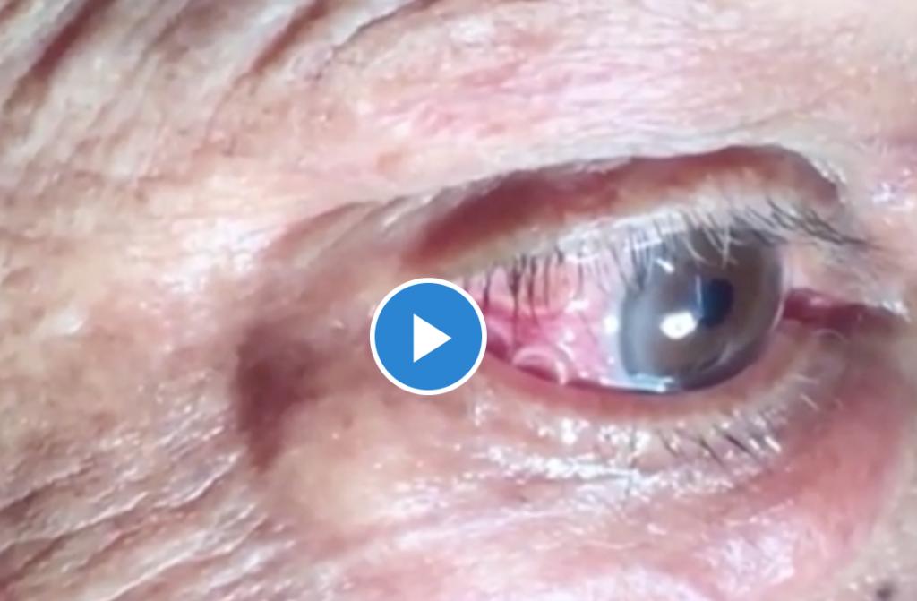 worm removed from human eye