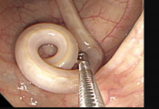parasites worms during colonoscopy