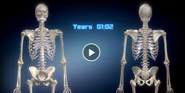 scoliosis 3D animation video