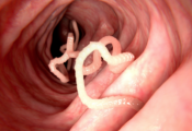 Worms that can kill you