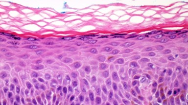 Histology and Histopathology