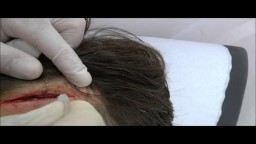 Forehead wound repaired