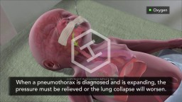 Pneumothorax Treatment