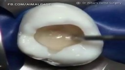Dentist Filling Tooth