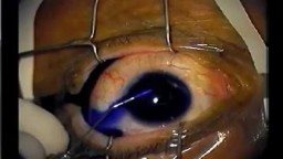 Amazing Cataract Surgery