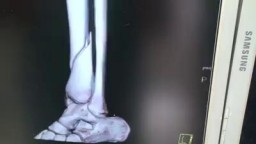 Suprapatellar Tibial Intramedullary Rod Surgery