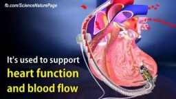 Interventricular Heart Pump