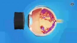 Retina Laser Surgery
