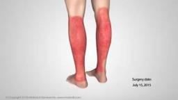 Full-Thickness Skin Grafts