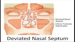 Deviated nasal septum Surgery