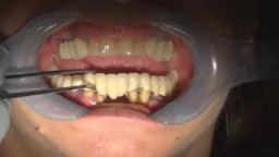 Pulling teeth without bleeding.