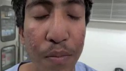 Scar Less Rhinoplasty or Nose Surgery by Dr. Ajaya Kashyap in Delhi, India