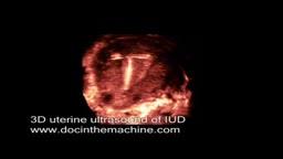 3D ultrasound of IUD in uterus