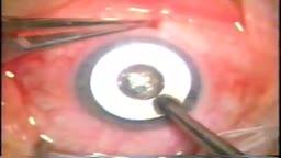 Lamellar Keratoplasty (LK)