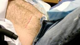 Supra Pubic Catheter change