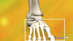 Formation of Bunions