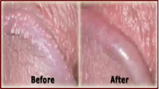 White Spots On Shaft Pearly Penile Papules Treatment Cream Single