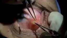 Eyeball cyst Removal