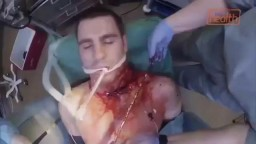Chainsaw Blade Inside Neck Removal Surgery